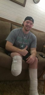 Castleton alum recovering after serious accident